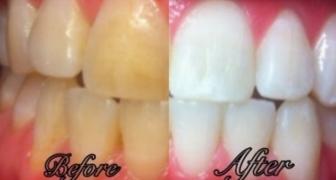 Ako vybieliť doma zuby za 3 minúty