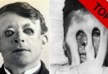 TOP 5 znepokojivých fotografií z 1. svetovej vojny