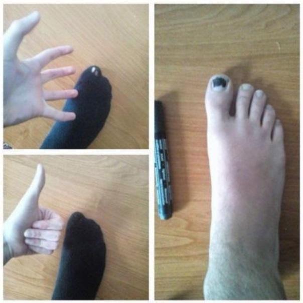 Ako si poradiť s deravou ponožkou