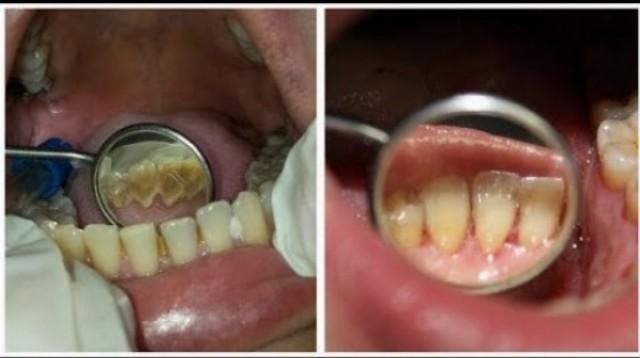 Extrémne dentálne čistenie