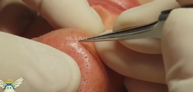 Odstraňovanie čiernych bodiek z nosu